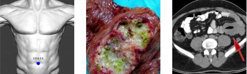 laparoskopi videoları