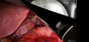 Gallbladder Duplication