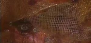 Single incision TEP repair