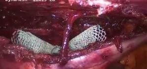 Retrorectus ( kas arkası) onarım