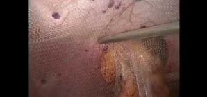 Laparoscopic Parastomal Hernia Repair