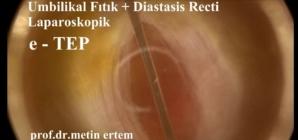 e-TEP , ventral fıtık onarımı