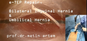 e – TEP , Bilateral Inguinal and Umbilical Hernia